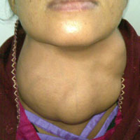A guide to thyroid disease